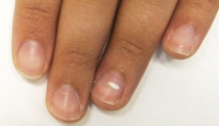 Nails with white spots like grains of rice is what disease?